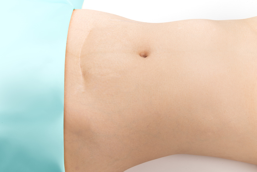 depressed c-section scars can give an insight to post surgical c-section adhesions